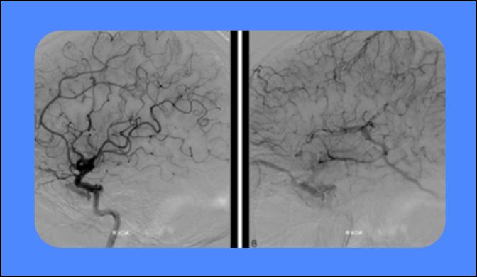 La radiocirugía con bisturí de rayos gamma como alternativa de tratamiento de las fístulas carótido-cavernosas tipo B según Barrow
