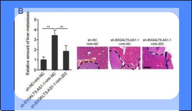 El RNA no codificante largo B3GALT5-AS1 suprime las metástasis hepáticas por cáncer de colon mediante la supresión de los microRNA-203